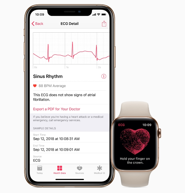 watchOS 5.1.2 is Available Today, Brings ECG and Irregular Heartbeat Detection