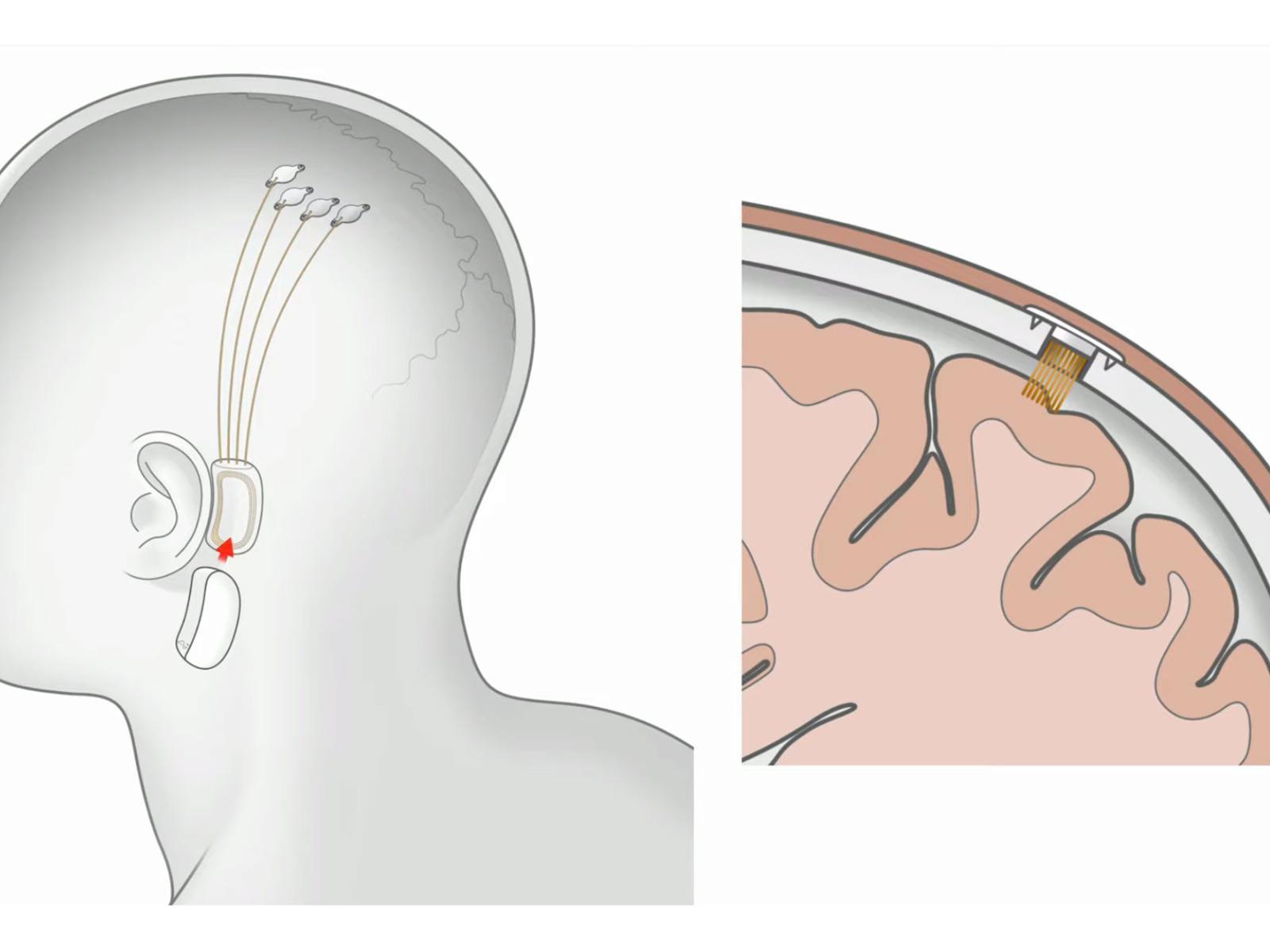 Image result for neuralink