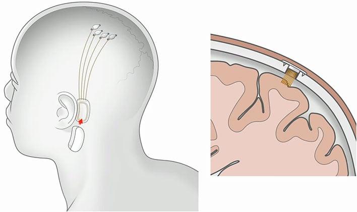 Neuralink Implant