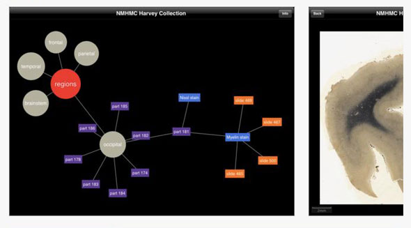 NMHMC Einstein App for iPad