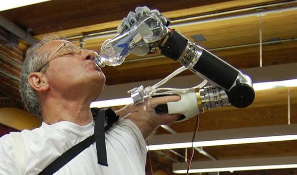 DEKA prosthetic arm